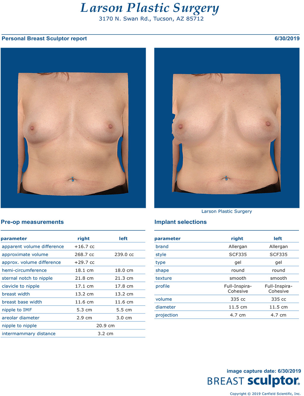 Breast Implants Tucson