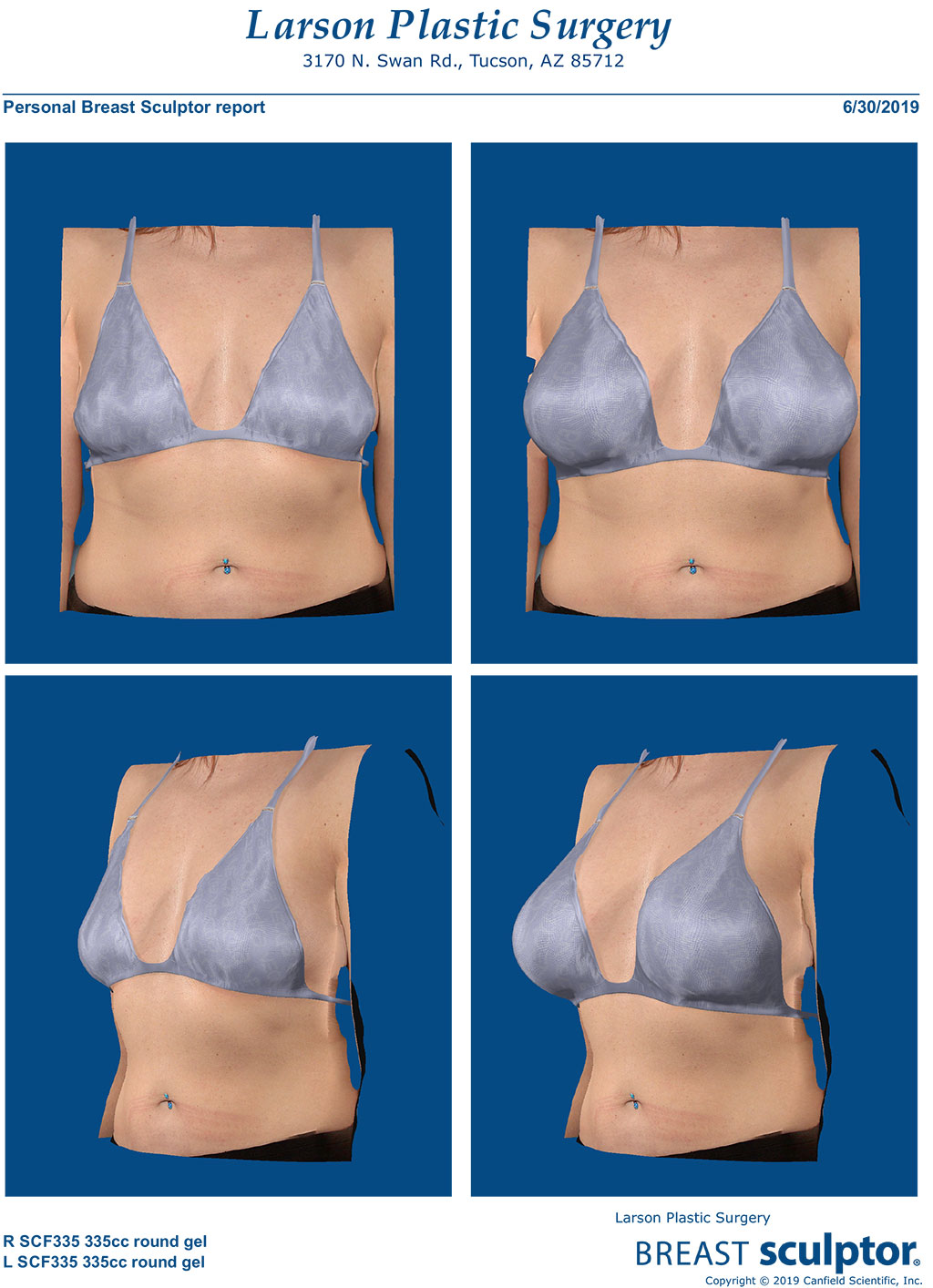Best Breast Augmentation Tucson