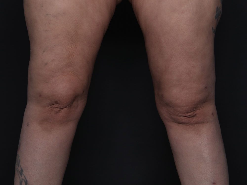 Lipedema Weight Lifting