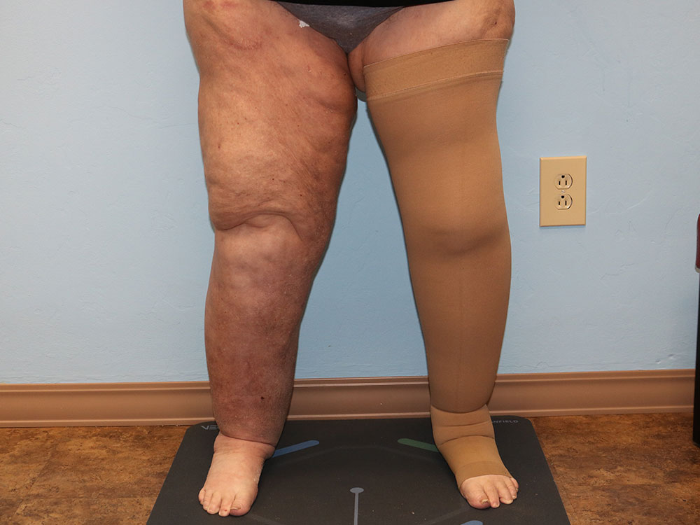 Lipedema Before and After | Larson Plastic Surgery