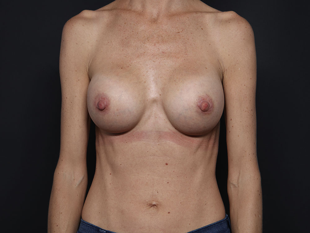 Breast Augmentation in Tucson
