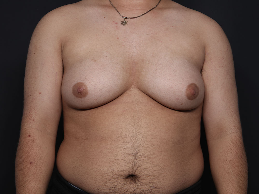 FTM Top Surgery in Tucson