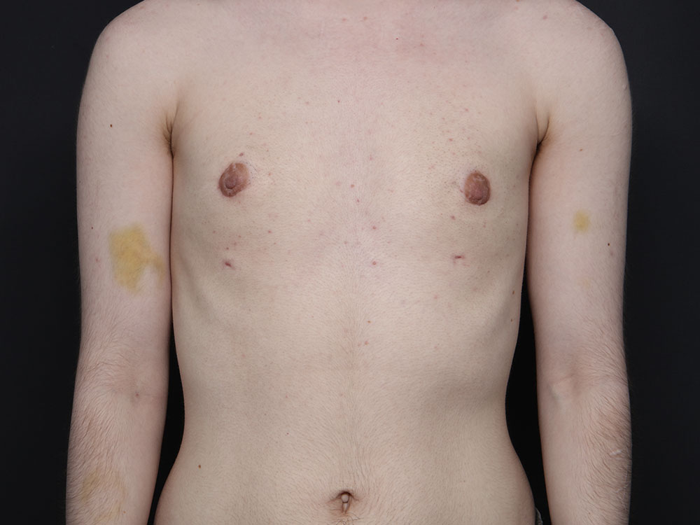 Female male trans surgery to Transgender Surgery