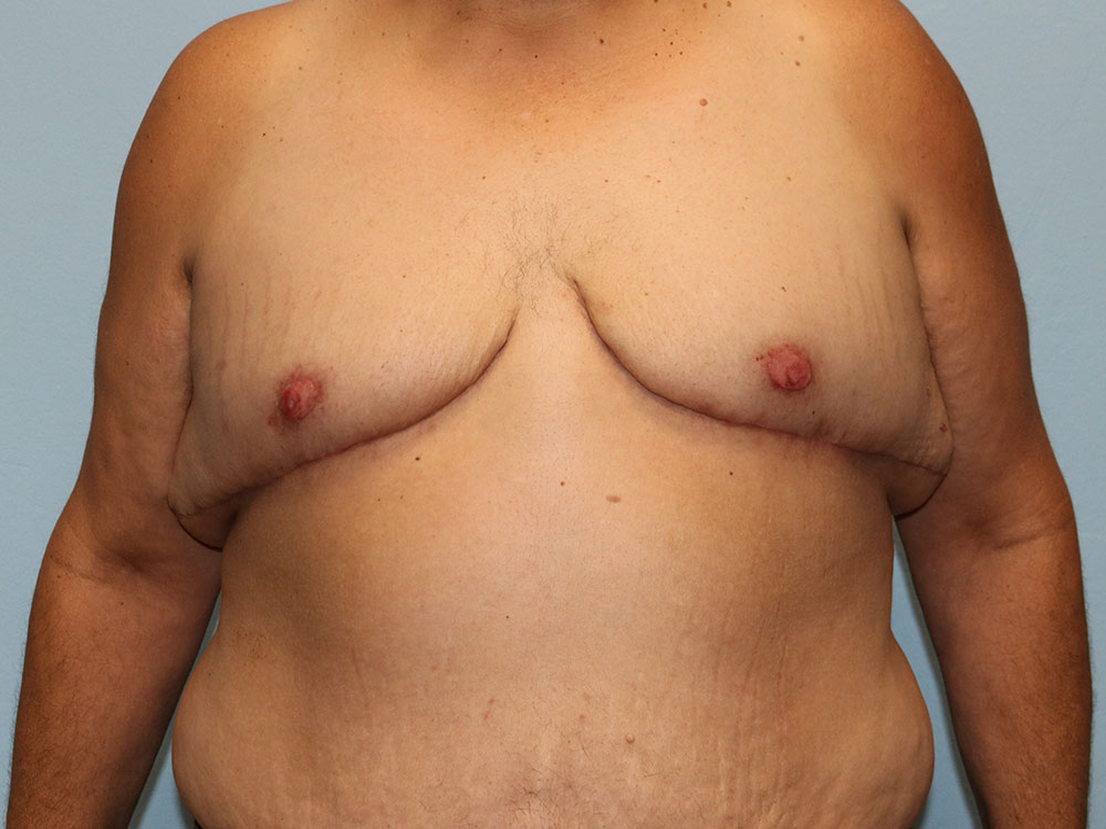 TG Top Surgery Tucson